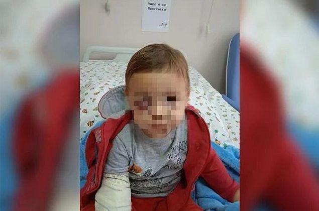 Bebê que sobreviveu a ataque em creche em SC apresenta melhora