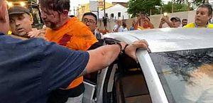 Cid Gomes deixa UTI de hospital após ser baleado durante manifestação no CE