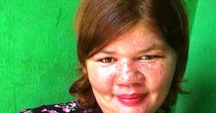 Rutiane foi espancanda por morador de rua em Fortaleza