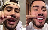 Kevinho aparece sem as lentes de contato dos dentes e vira meme na web
