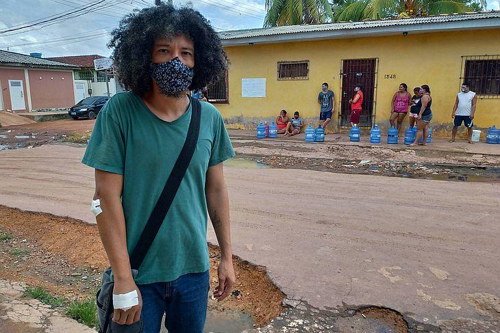 Professor Fausto Suzuki, 40, diz ter levado dois tiros de bala de borracha no braço, em protesto em Macapá