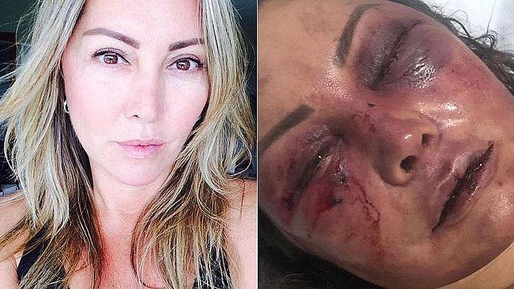 Elaine teve pontos de fratura pelo rosto e vai precisar passar por cirurgia plástica