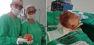Baiano descobre em cirurgia que tinha pedra de quase 1,5 kg na bexiga
